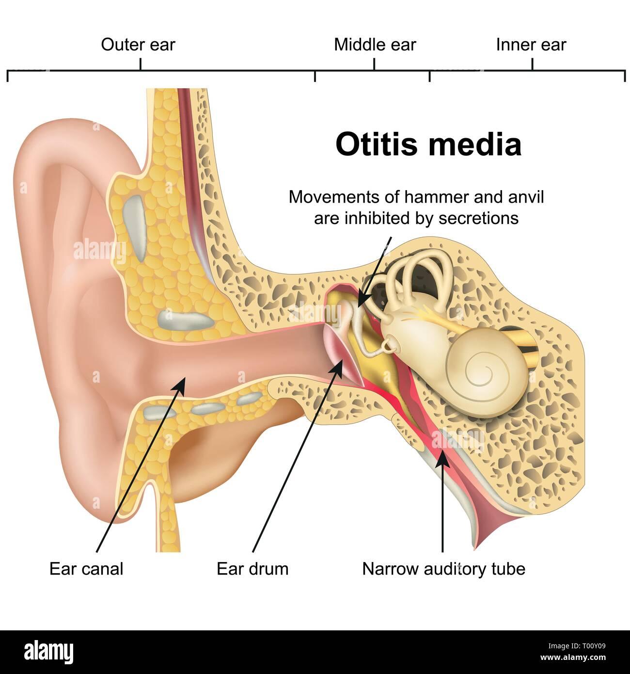 hight resolution of otitis media ear disease 3d medical vector illustration on white background stock image