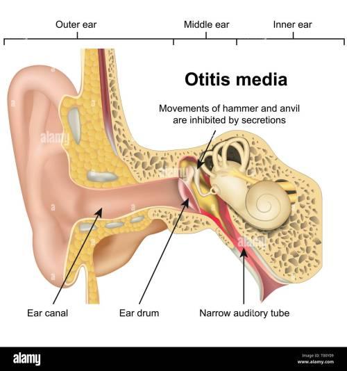 small resolution of otitis media ear disease 3d medical vector illustration on white background stock image