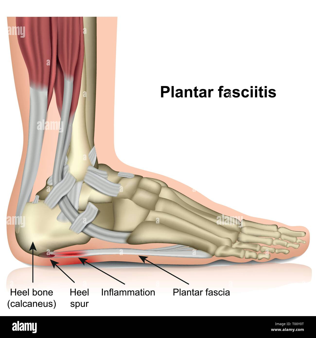 hight resolution of plantar fasciitis 3d medical vector illustration on white background stock image
