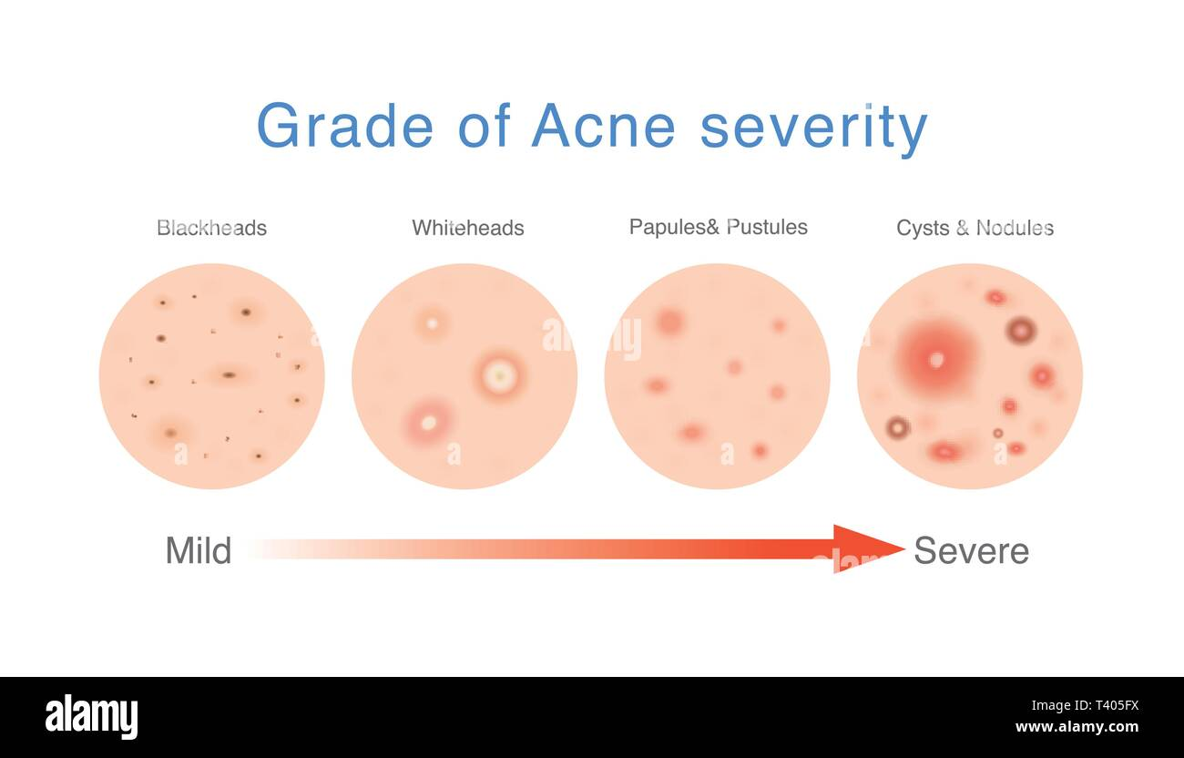 hight resolution of medical diagram about grade of acne severity