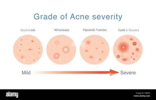 small resolution of medical diagram about grade of acne severity
