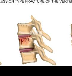 vector illustration of a compression type fracture of the spine stock image [ 1300 x 679 Pixel ]