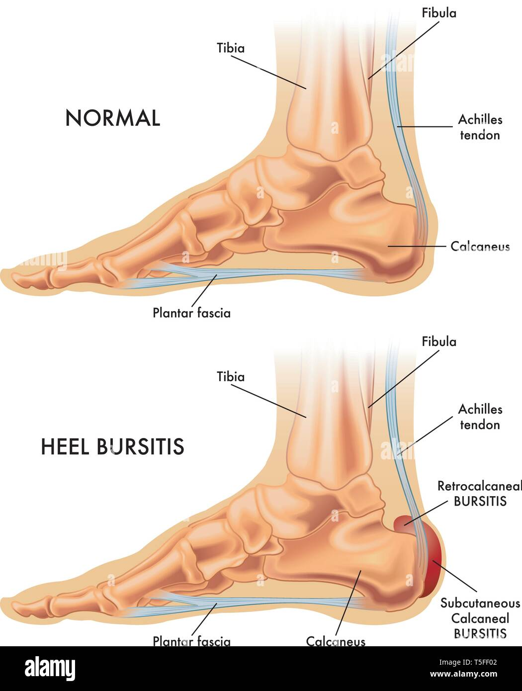 hight resolution of a medical illustration of a healthy foot and a foot affected by heel bursitis