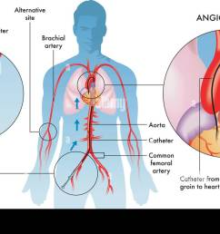 labelled illustration of coronary angiography operations on adult male white background stock image [ 1300 x 839 Pixel ]