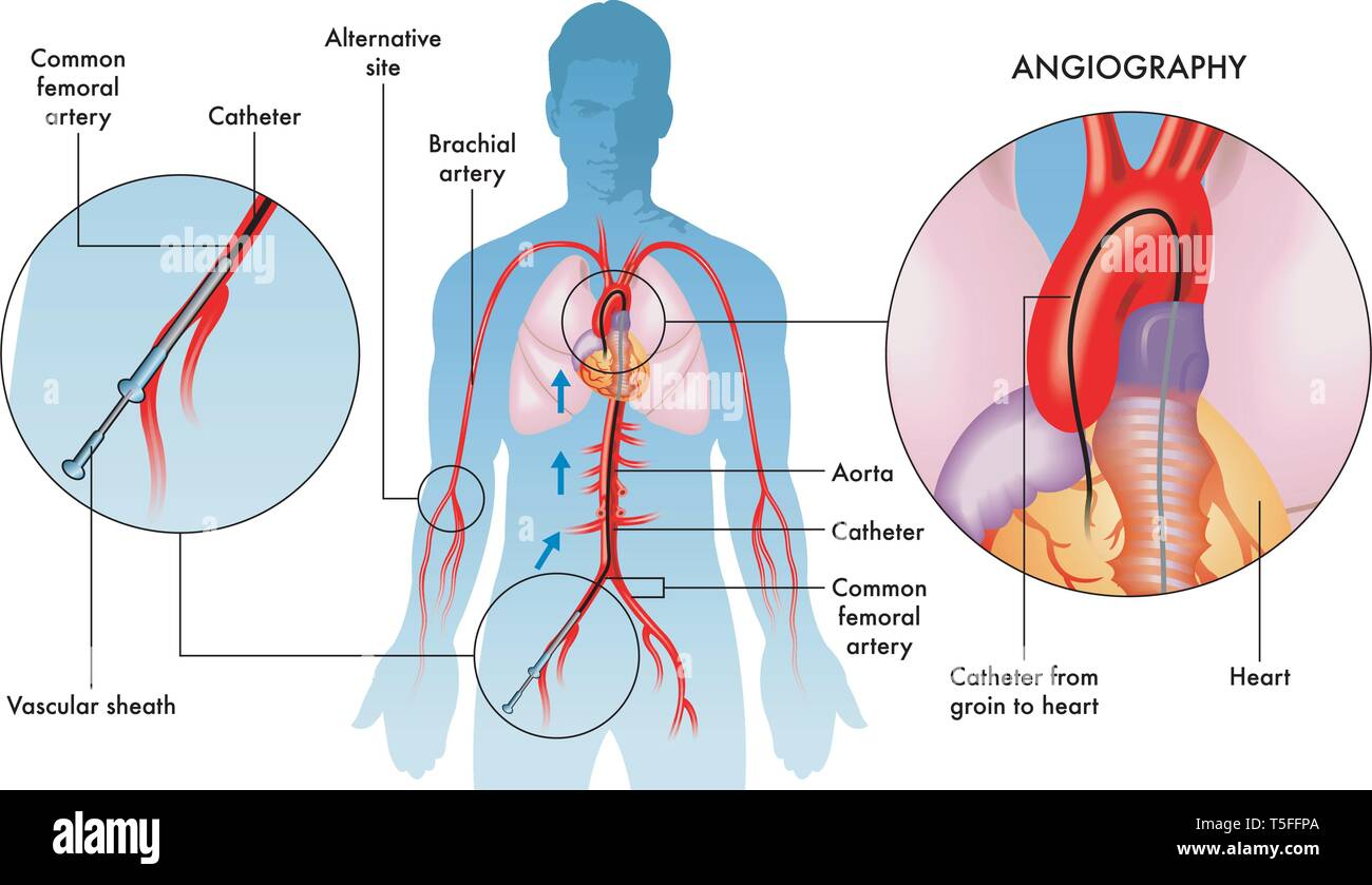 hight resolution of labelled illustration of coronary angiography operations on adult male white background stock image