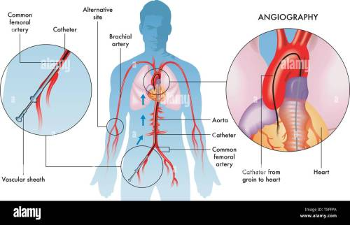 small resolution of labelled illustration of coronary angiography operations on adult male white background stock image
