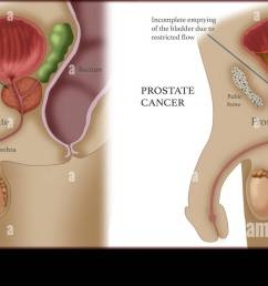 comparison of normal prostate and prostate cancer illustration [ 1300 x 695 Pixel ]