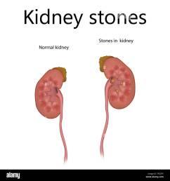 kidney stones illustration [ 1300 x 1390 Pixel ]