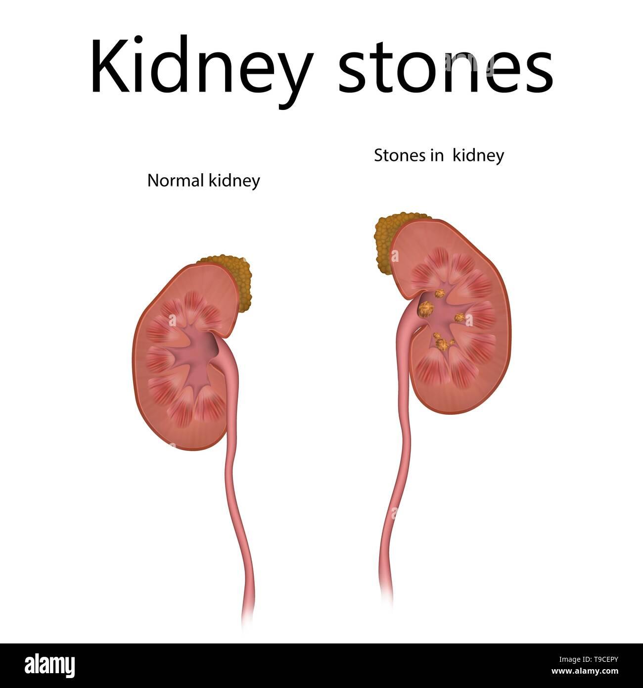 hight resolution of kidney stones illustration