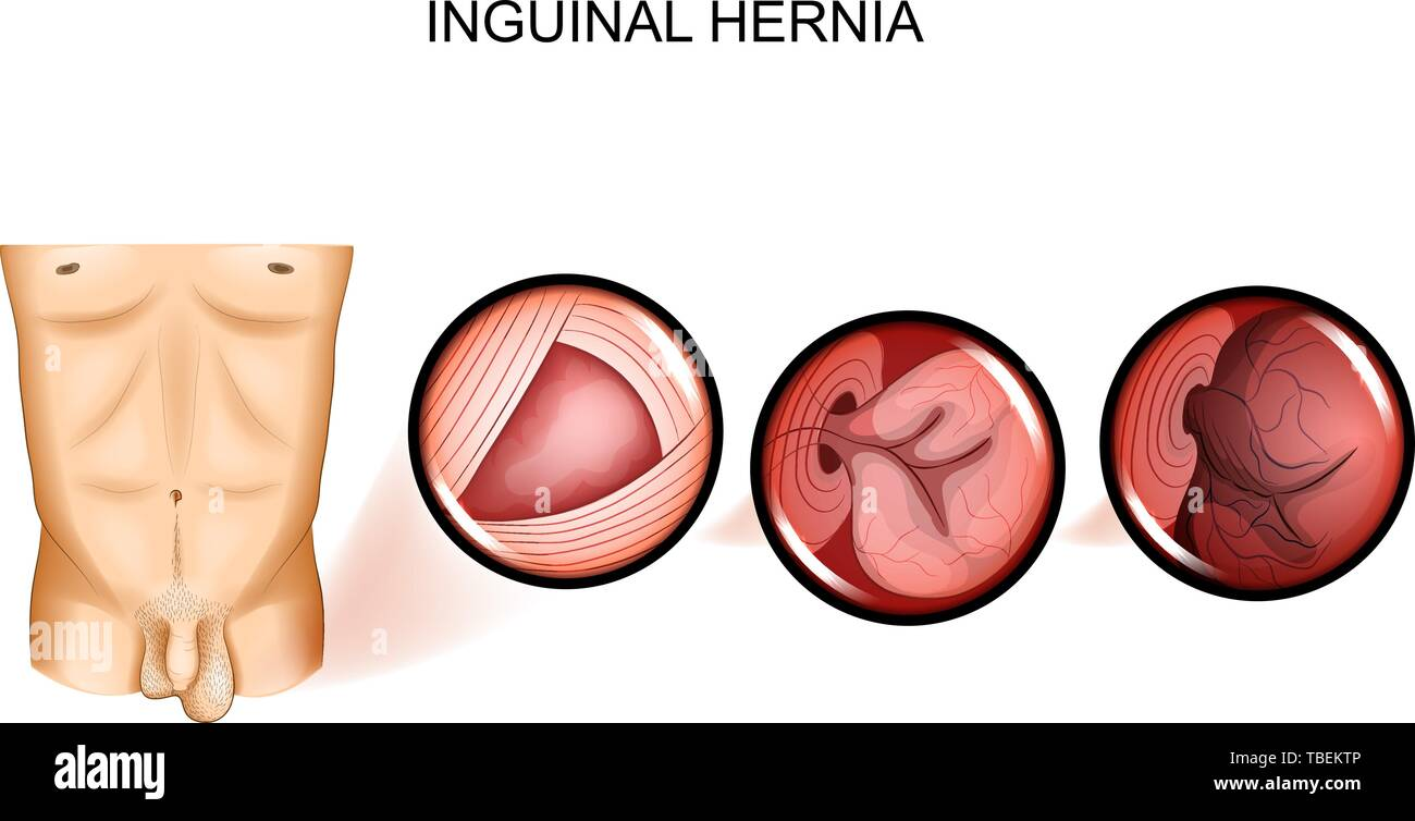hight resolution of vector illustration of inguinal hernia entrapment surgery stock image