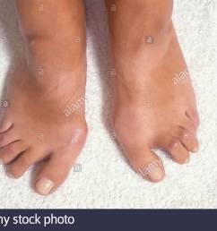 woman with deformed feet due to rheumatoid arthritis stock image [ 1300 x 932 Pixel ]