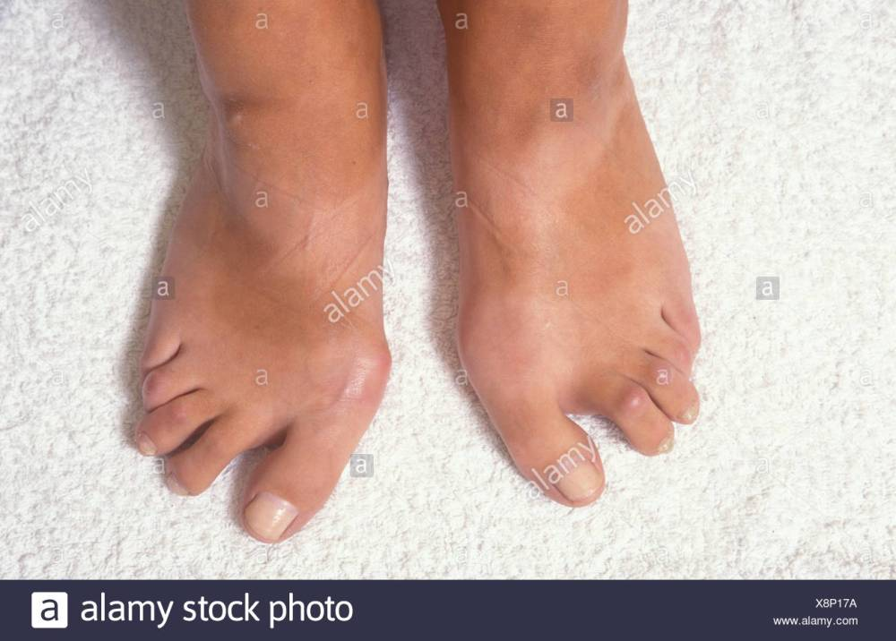 medium resolution of woman with deformed feet due to rheumatoid arthritis stock image