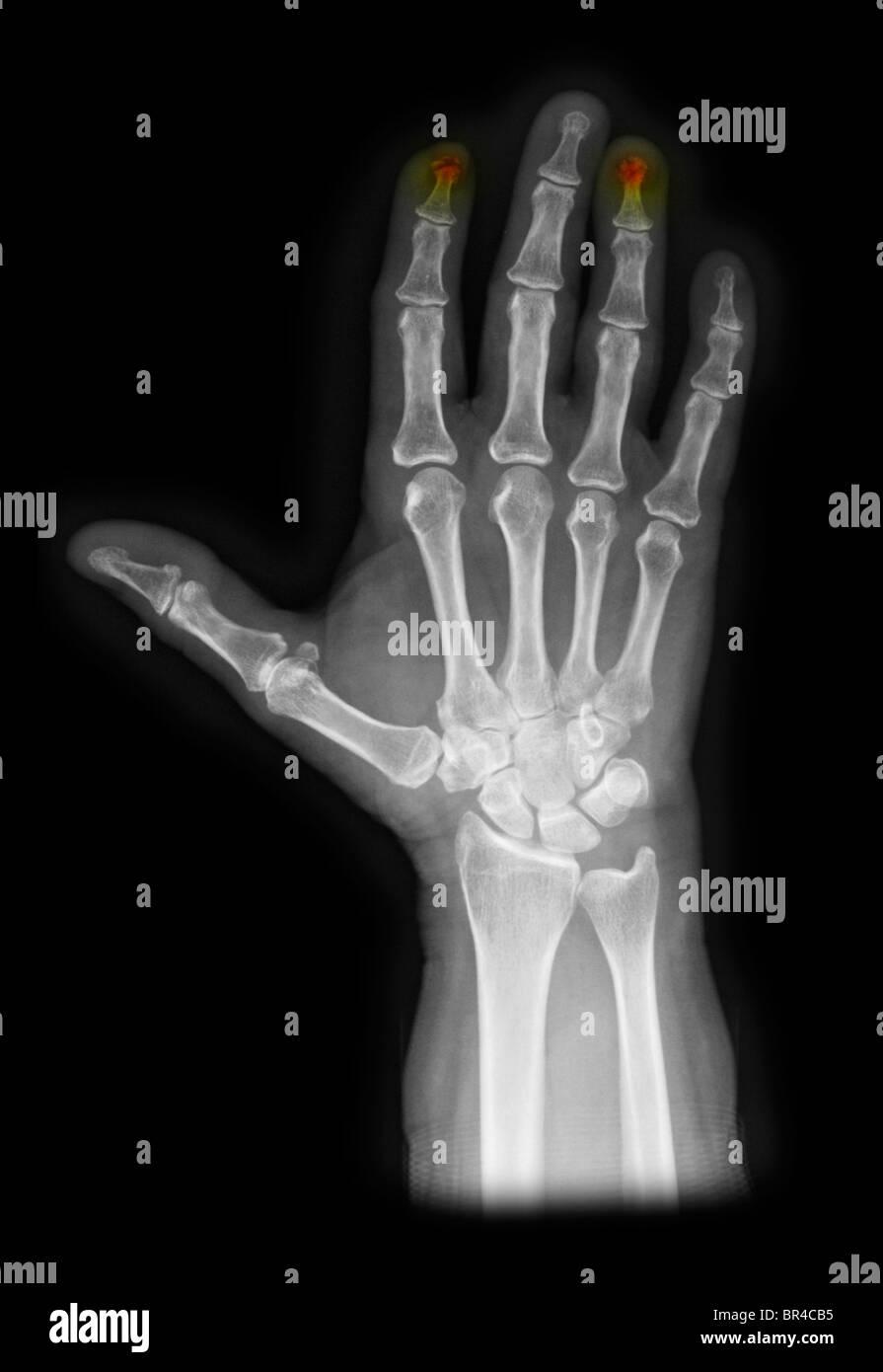 Rntgenbild zeigt zerkleinerte Fingerspitzen der Hand