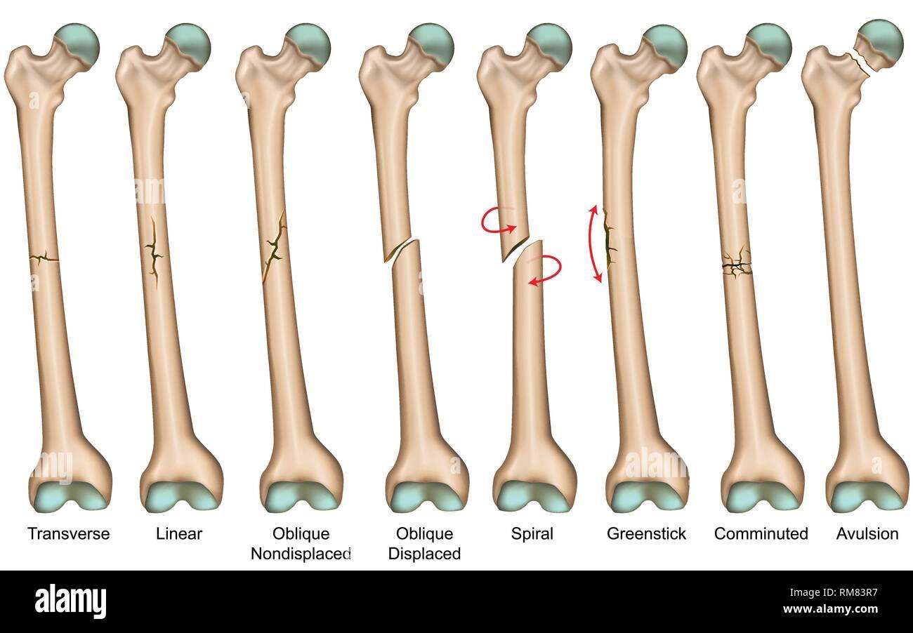 Tipos De Fractura Osea Medical Ilustracion Vectorial
