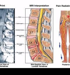 diagram of l4 l5 diagram data schema diagram of spine l4 l5 diagram of l4 l5 [ 1300 x 963 Pixel ]