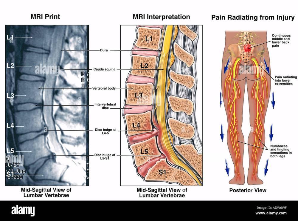 medium resolution of diagram of l4 l5 diagram data schema diagram of spine l4 l5 diagram of l4 l5