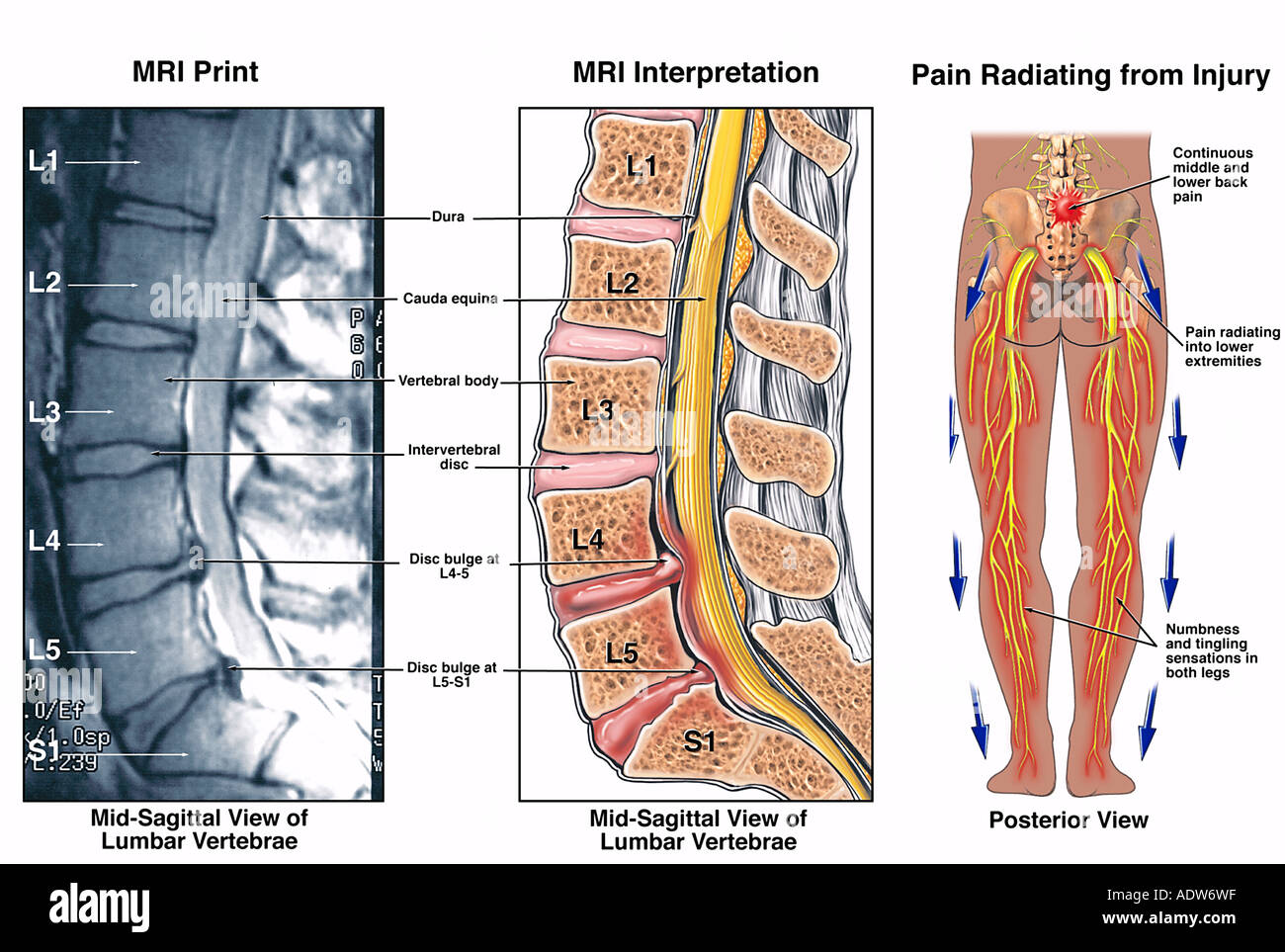 hight resolution of diagram of l4 l5 diagram data schema diagram of spine l4 l5 diagram of l4 l5