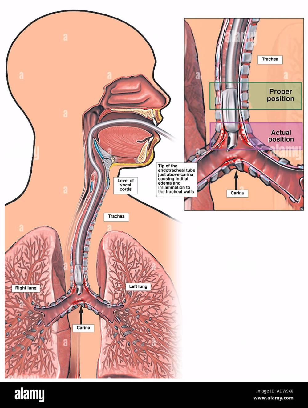 medium resolution of improper endotracheal intubation