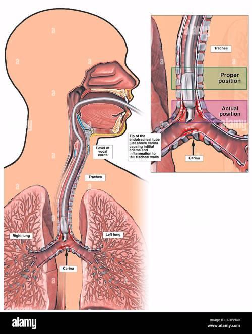 small resolution of improper endotracheal intubation