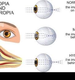 illustration of a healthy eye the eye myopia and hyperopia [ 1300 x 921 Pixel ]