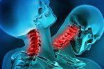 whiplash et ostéopathie