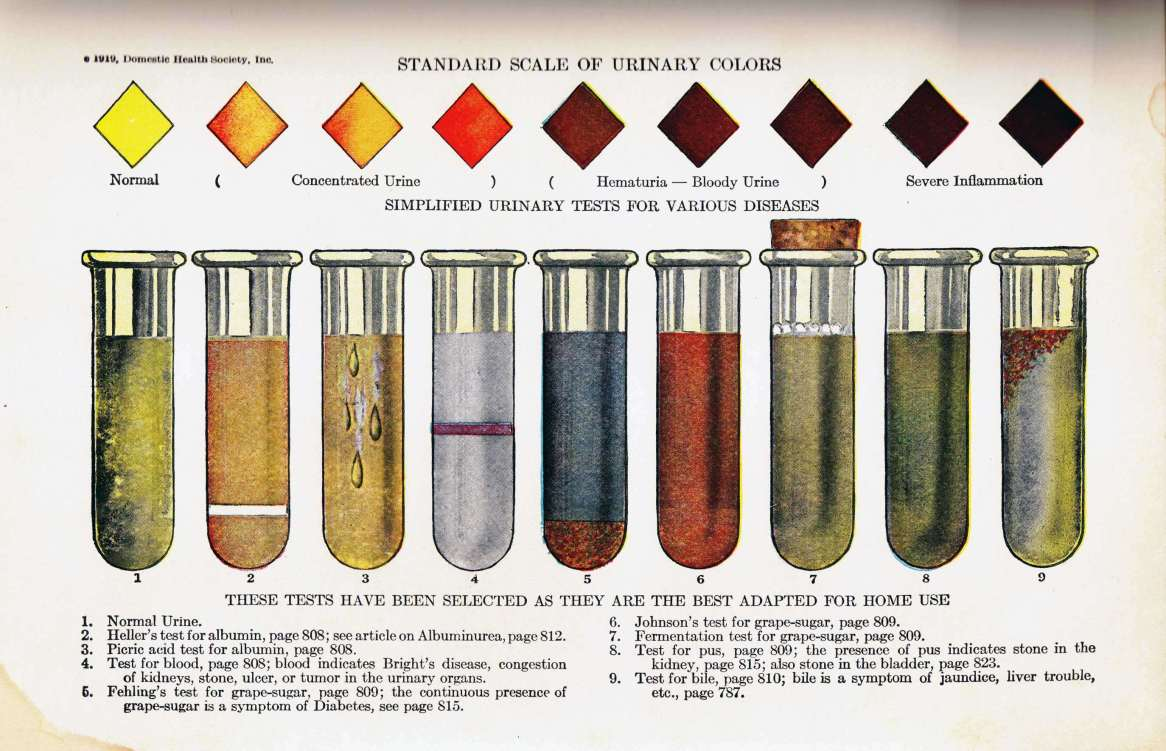 Standard Scale of Urinary Colors
