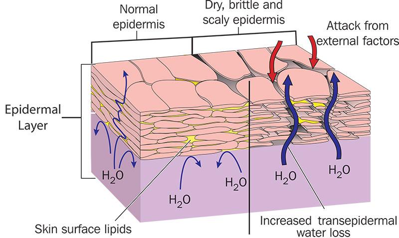 dry skin - lipid loss - cabot skin care - pol cream - dry skin diagram