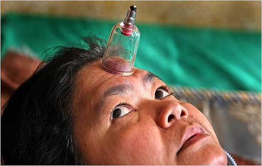 Cambodian immigrant Heap You continues to use the traditional 'cupping' treatment she learned in her homeland, believing it allows harmful 'excess wind' to escape her body. Mental health professionals have long been skeptical of such techniques, but some are becoming more open to including them along with Western treatments. With cupping, a small heated glass is placed upside-down on the skin. As the air inside it cools, it creates a vacuum that draws some of the skin into the cup, leaving a welt.