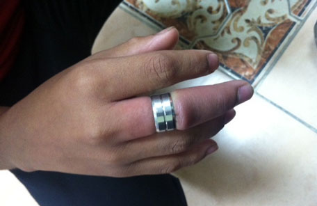 Boys swollen finger stuck in ring for two days  Emirates247
