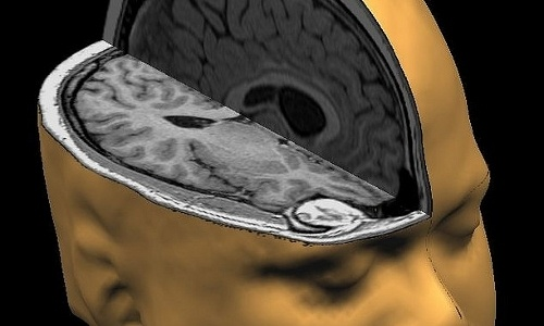 Top 10 Ways Your Brain Is Sabotaging You (and How to Beat It)