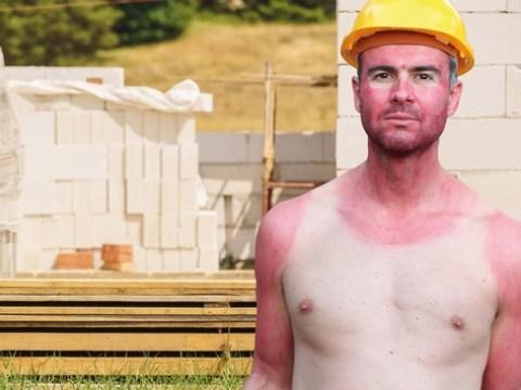 Sonnenstrahlung: Jetzt die Haut richtig schützen