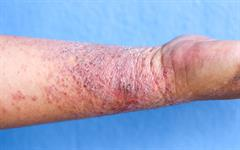 Dupilumab: first biologic for moderate-to-severe atopic ...