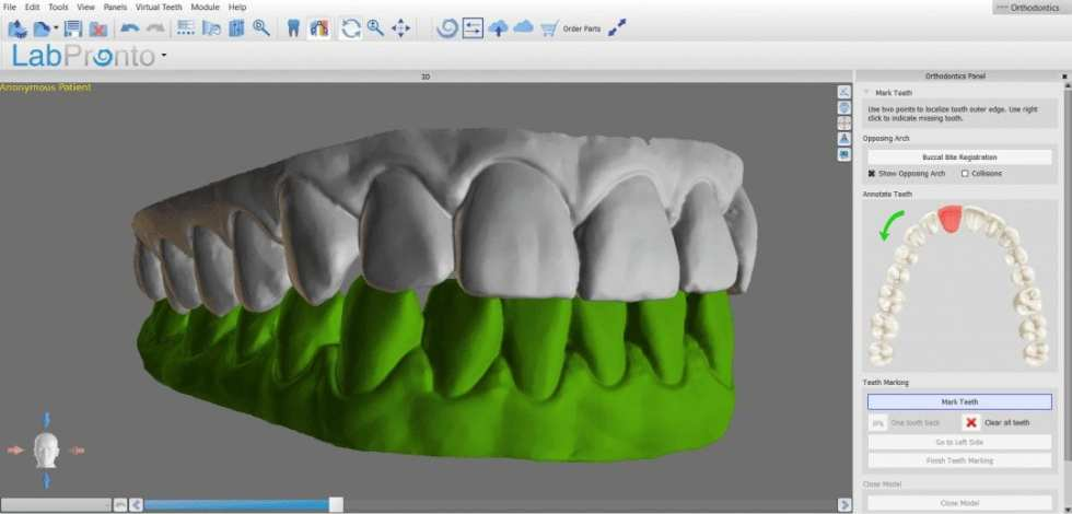 Full Arch Scans and Clear Aligners from Medit i500 Scans