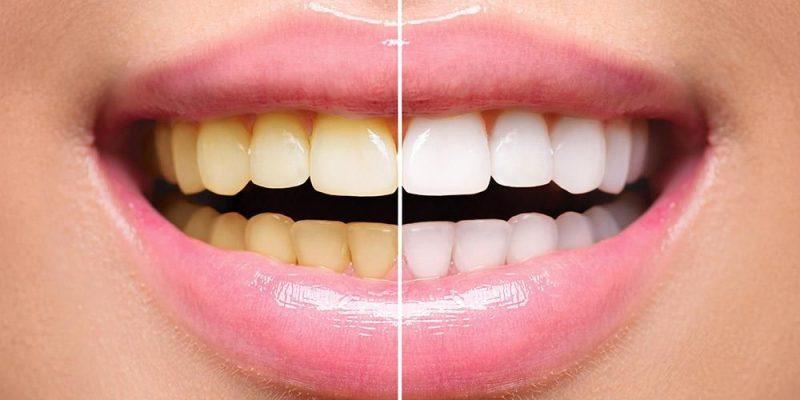 putihkan gigi kuning