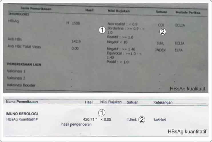Contoh perbandingan hasil pemeriksaan HBsAg kualitatif dengan HBsAg kuantitatif