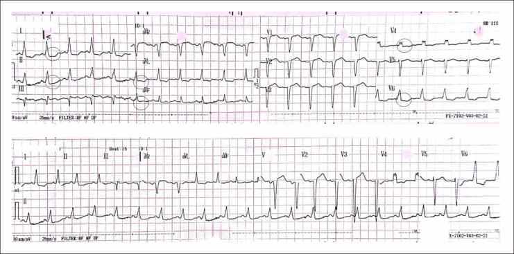 EKG awal kasus NSTEMI dd/ UAP