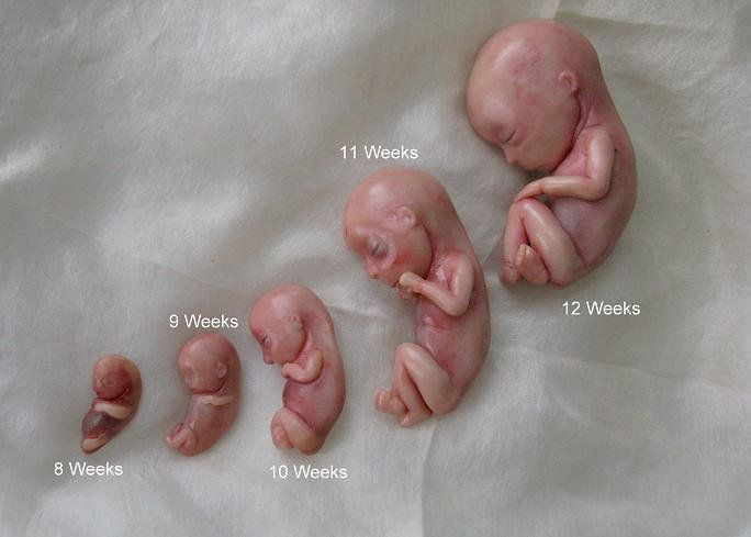 abortion clinics, abortion, fetal models, fetuses, unborn babies