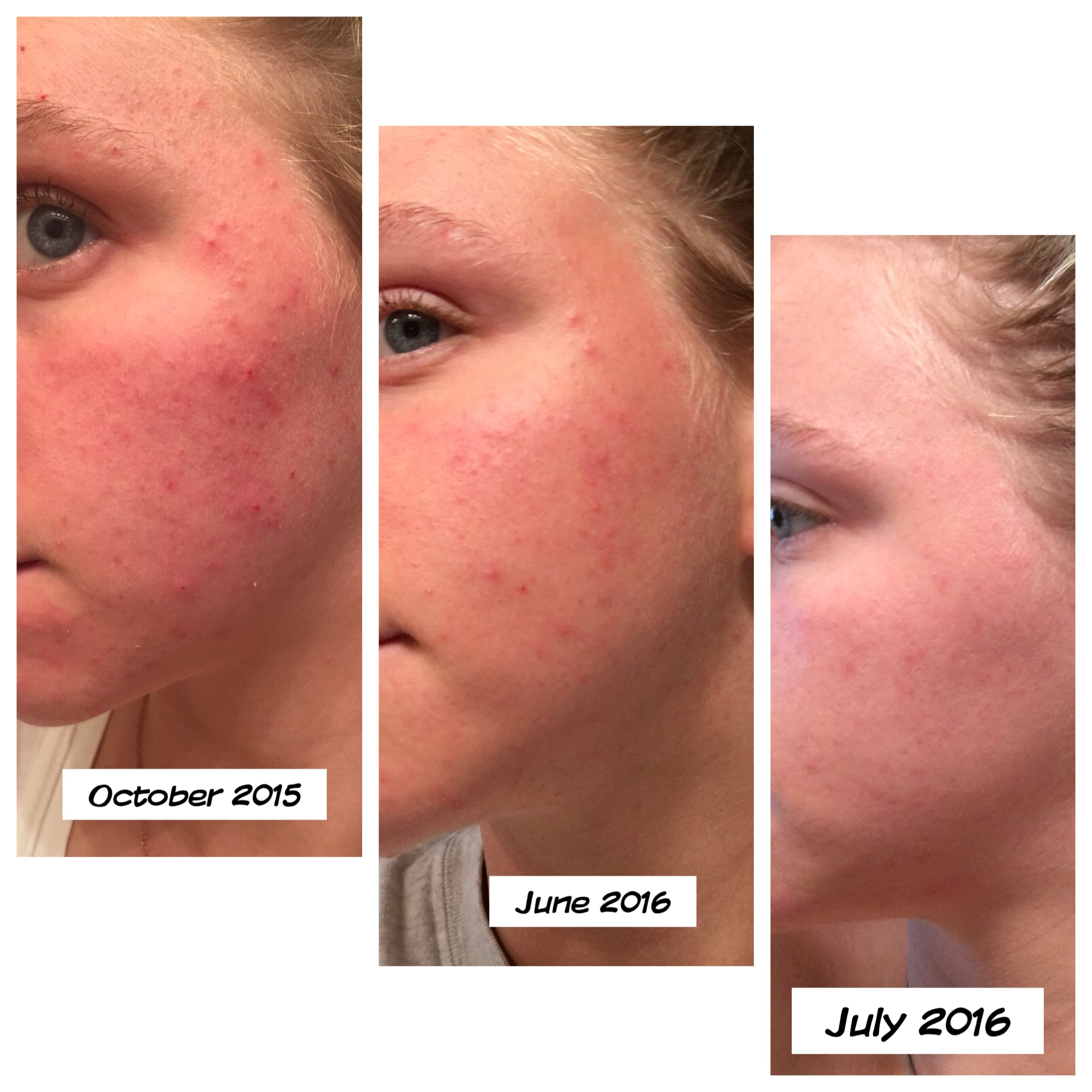 i cured my acne and rosacea calee shea