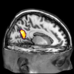 Neuro Signature of Alzheimer's Disease