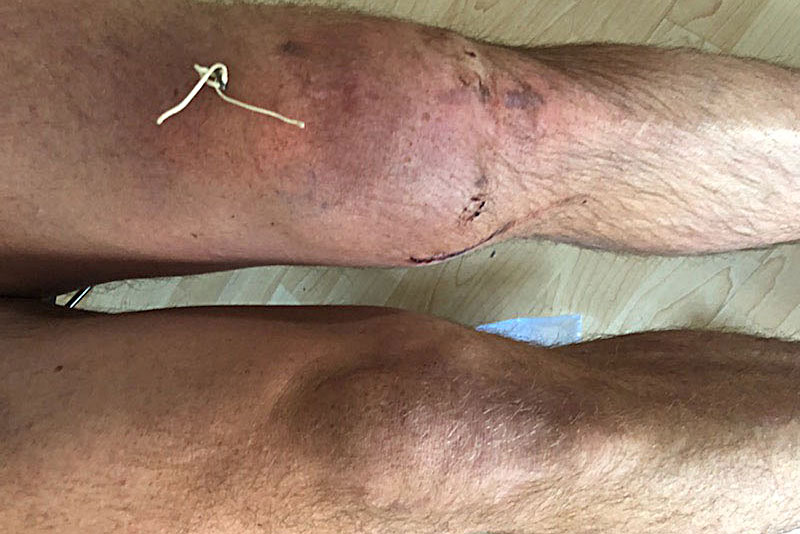 Sports ACL Donnelly knee web