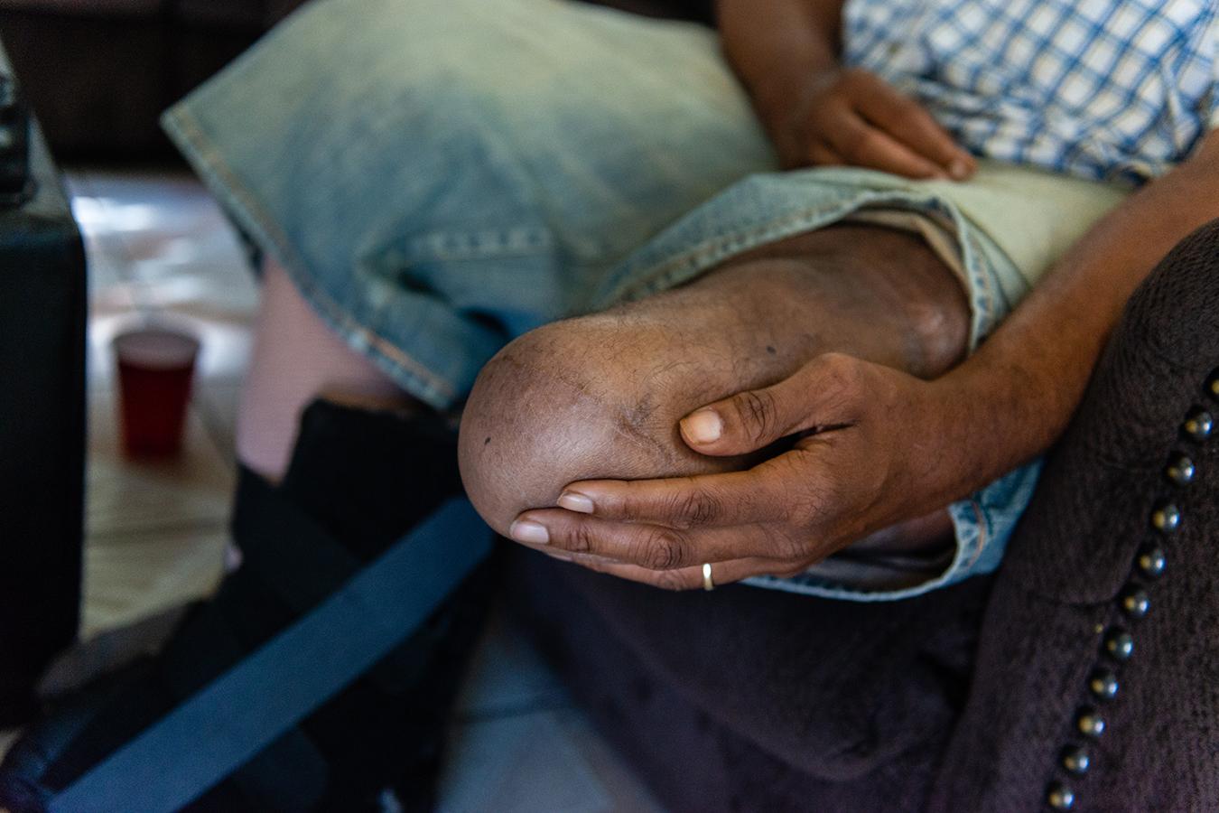 Amputation epidemic among Black Americans in Mississippi 3/7/21