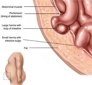 hernia-symptoms-graphic-lg