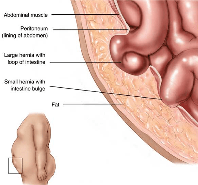 hernia symptoms graphic