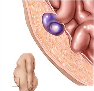 home-learn-more-hernia-symptoms