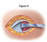 inguinal-repair-fig-h