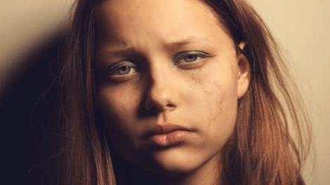 depression - La depresión afecta a una mayor cantidad de jóvenes que nunca