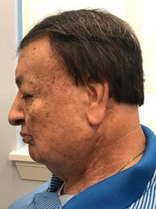 IMG 4732 225x300 - A MAN FROM ORLANDO RECEIVES AN EAR PROSTHESIS AND HIS LIFE IS CHANGED FOREVER