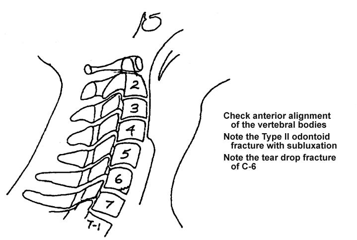 X-ray Skills 2: Cervical Spine X-ray Interpretation