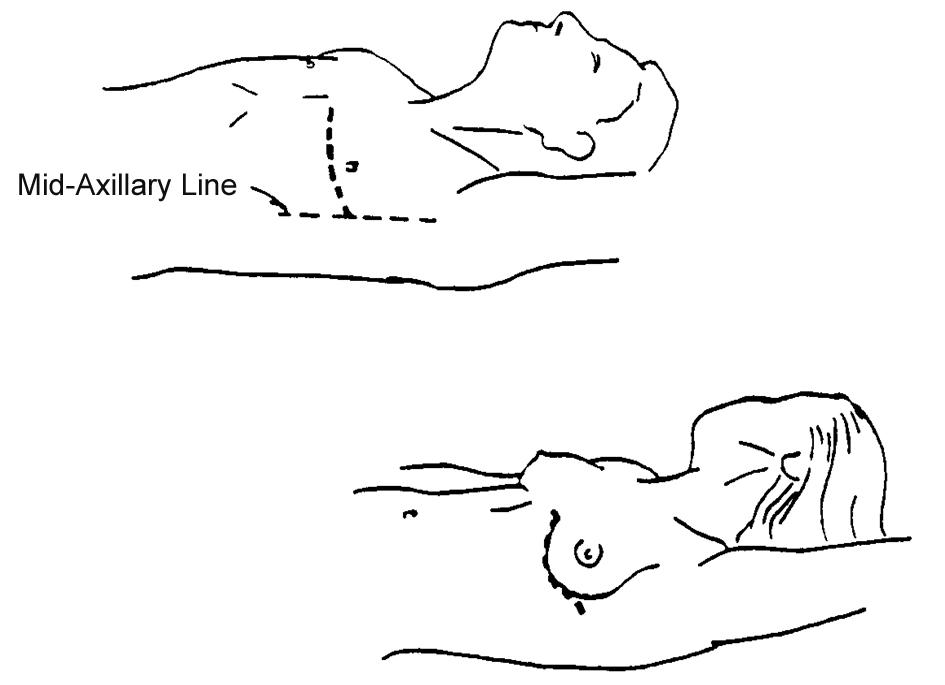 Circulation Skills 4: Emergency Thoracotomy
