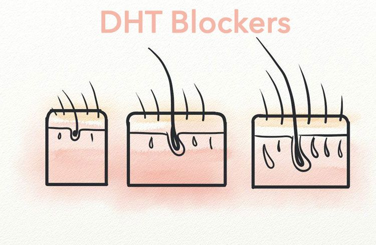 La DHT : La principale cause de la calvitie